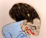Tutukan-Bala setra-Ey 230-Yogya-hydrocephalus-lft-c.W.Angst.jpg